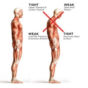 Good-Bad-Posture-ResistanceTrainingHelps
